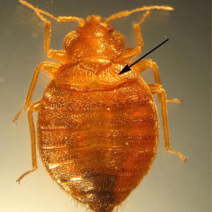 Bedbugs They Re On The Increase And They Want To Feed On